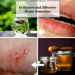 14 Bizarre & Unlikely Home Remedies