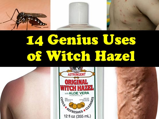 14 Genius Uses of Witch Hazel
