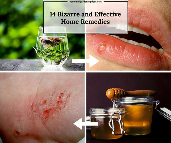 14 Home Remedies that Actually Work