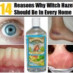 14 Reasons Witch Hazel Should be in your Medicine Cabinet