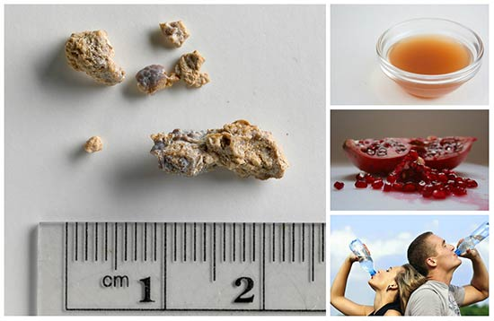 6 All Natural Kidney Stone Remedies