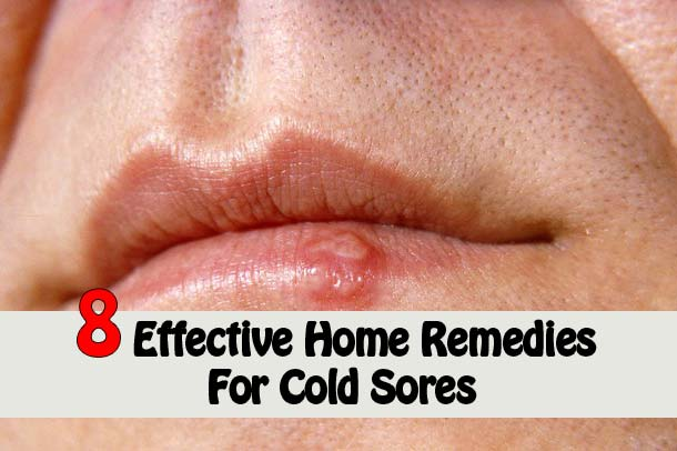 8 Ways To Get Rid of Cold Sores Super Fast
