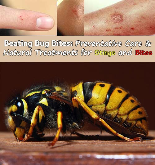 Beating-Bug-Bites-Preventative-Care-and-Natural-Treatments-for-Stings-and-Bites