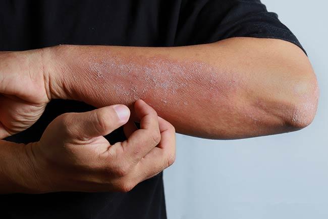 Eczema Natural Relief