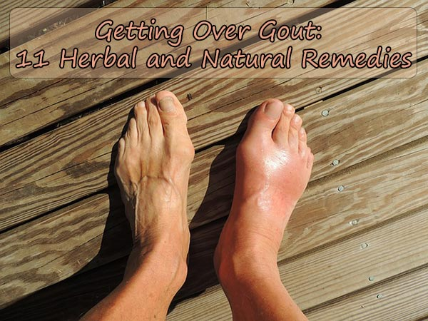 11 Herbal and Natural Remedies For Gout