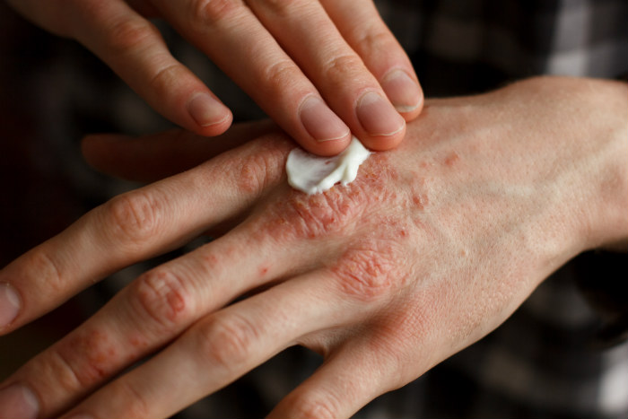 Healing Cream For Eczema And Psoriasis