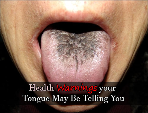 Health Warnings your Tongue May Be Telling You