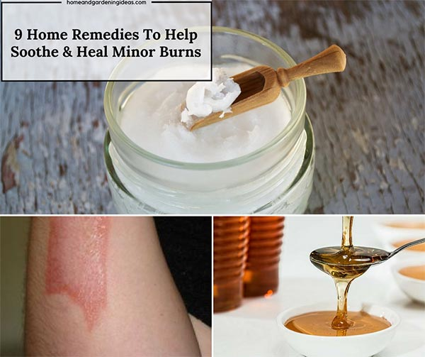 9 Home Remedies To Help Soothe & Heal Minor Burns