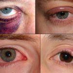 Home Remedies for Simple Eye Problems