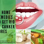 10 Home Remedies to Get Rid of Canker Sores