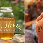 How Raw Honey Helped Save Her Dads Diabetic Foot