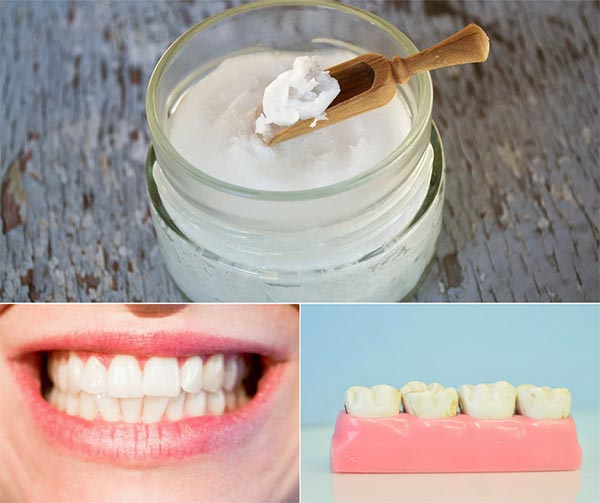 How To Whiten Teeth And Heal Gums With Oil Pulling