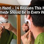 Witch Hazel – Reasons This Herbal Remedy Should Be In Every Home