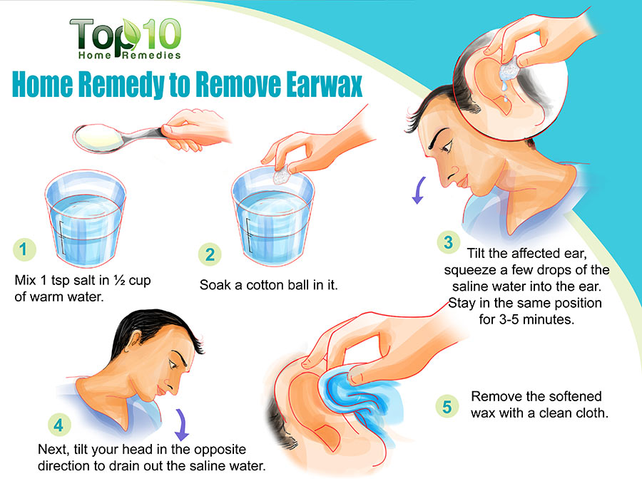 Top home remedies to remove