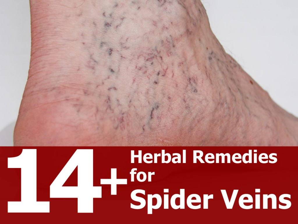 14 Remarkable Herbal Remedies For Spider Veins